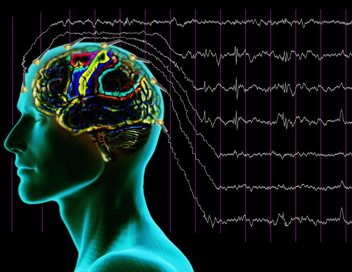 В СГТУ начал работать центр по изучению нелинейной динамики процессов головного мозга и сердца